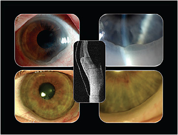Figure 1. In susceptible patients, a prolapse of the conjunctiva can occur beneath their scleral lenses.