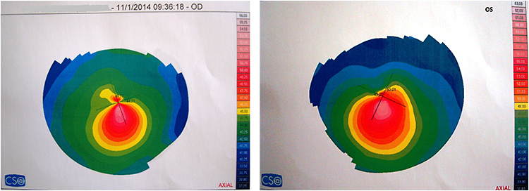 Figure 2. Corneal topography OD and OS obtained in 2014.