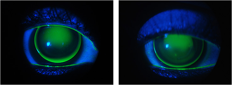 Figure 3. The new fit with a specialty keratoconus GP design.