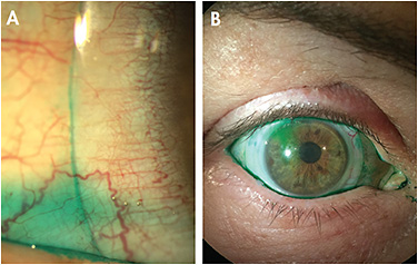 Figure 1. Lissamine green instilled after lens application. (A) A mild influx of the dye in the post-lens fluid reservoir. (B) Mild influx of the dye from the superior area. Lissamine green appears clearly beneath the lens in different peripheral areas. The image also shows nasal conjunctival staining. Courtesy of Hector Velasquez