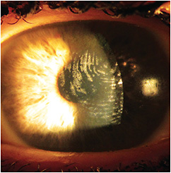 Figure 2. Surface deposits on the left scleral lens.