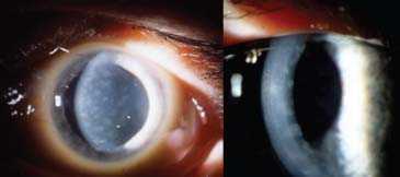 Fleck Corneal Dystrophy Posterior polymorphous corneal