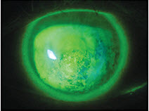 Irregular Cornea, Dry Eye, Contact Lens Care, Practice Management Tips, Pediatrics