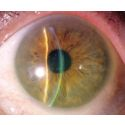Troubleshooting Scleral Lenses