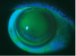 Severe Dry Eye in a Keratoconus Patient