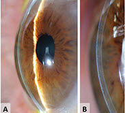 Contact Lenses After Keratoplasty