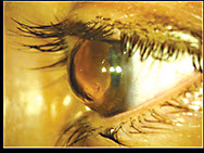 Contact Lens Case Reports: Bulging Graft? Consider a Sceral Lens