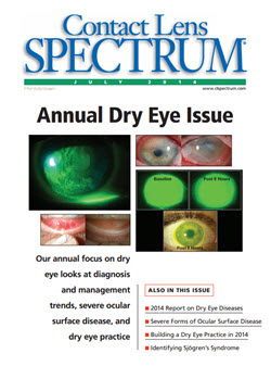 dry eye syndrome treatment guidelines