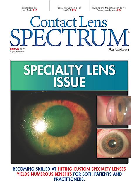 4c8faf26ffb Contact Lens Spectrum - February 2019