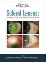 Scleral Lenses: ADVANCED FITTING, DESIGN, AND TROUBLESHOOTING