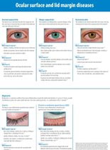 Ocular surface and lid margin diseases