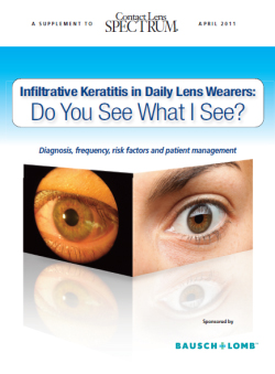 Infiltrative Keratitis in Daily Lens Wearers: Do You See What I See?